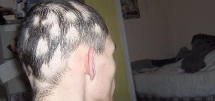 area Celsi: alopecia areata