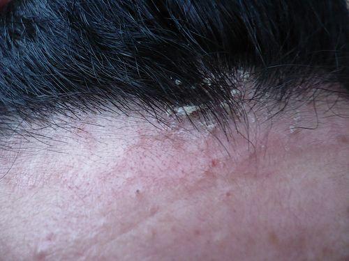 Medicina di eczema nazionale secca