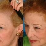 Caduta dei capelli nelle donne. Prima e dopo l'assunzioni di forti dosi di minoxidil