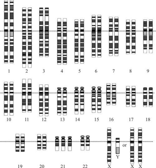 Trisonomia del cromosoma 21 associata alla Sindrome di Down