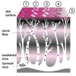Evoluzione dell Herpes Zoster (clicka per ingrandire)