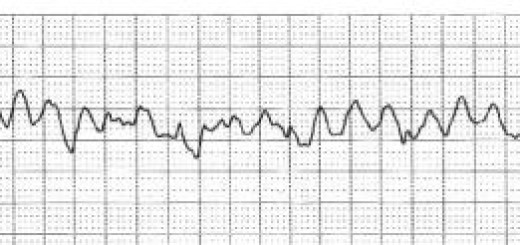 Aritmia: Fibrillazione Ventricolare