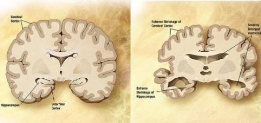 Comparazione tra un cervello normale (sinistra) e uno di un paziente affetto da Alzheimer