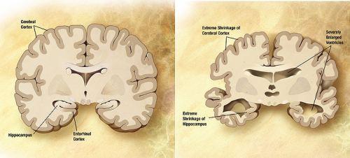 Comparazione tra un cervello normale e di un paziente affetto da Alzheimer