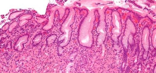 Gastrite (Helicobacter pylori)