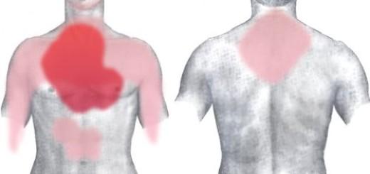 Infarto Miocardico: Zone di Dolore